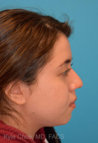 Non-Surgical Rhinoplasty