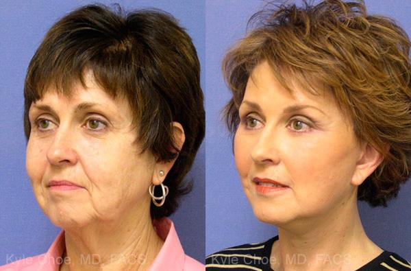 before and after photos in , , Mini-Facelift in Virginia Beach, VA
