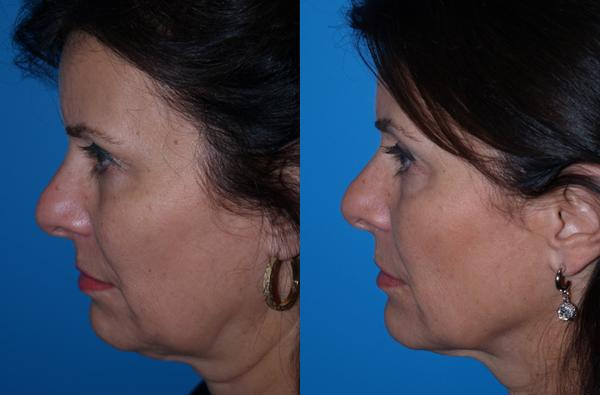 before and after photos in , , Ultherapy™ in Virginia Beach, VA