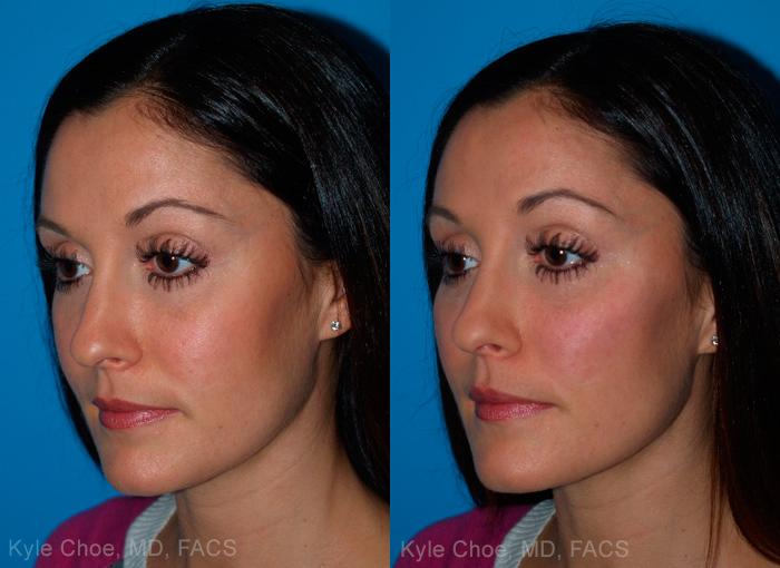 before and after photos in , , Volume Lift in Virginia Beach, VA