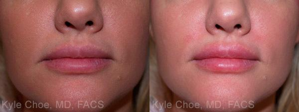 before and after photos in , , Injectable Fillers in Virginia Beach, VA