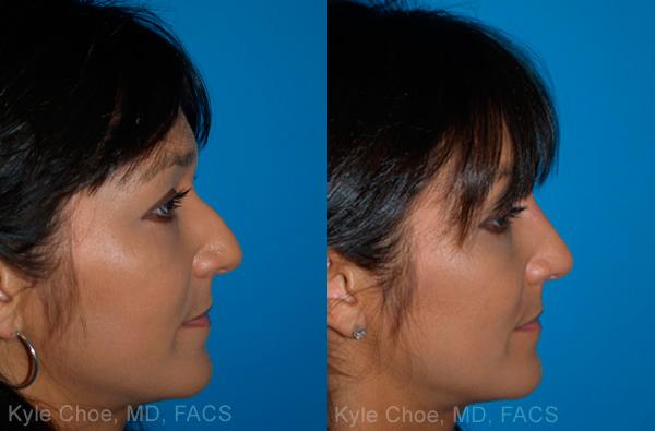 before and after photos in , , Non-Surgical Rhinoplasty in Virginia Beach, VA