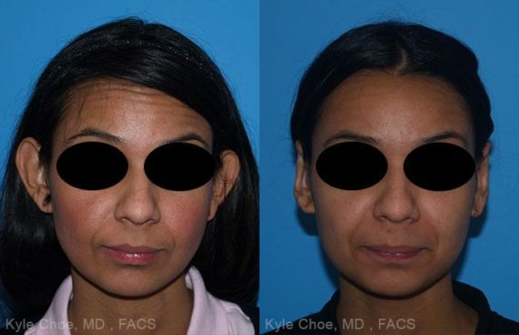 before and after photos in , , Otoplasty in Virginia Beach, VA