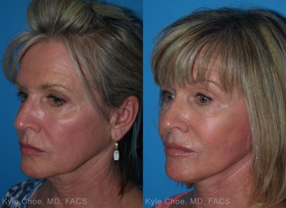 before and after photos in , , Neck Liposuction in Virginia Beach, VA