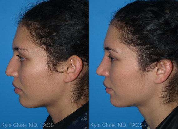 before and after photos in , , Rhinoplasty in Virginia Beach, VA