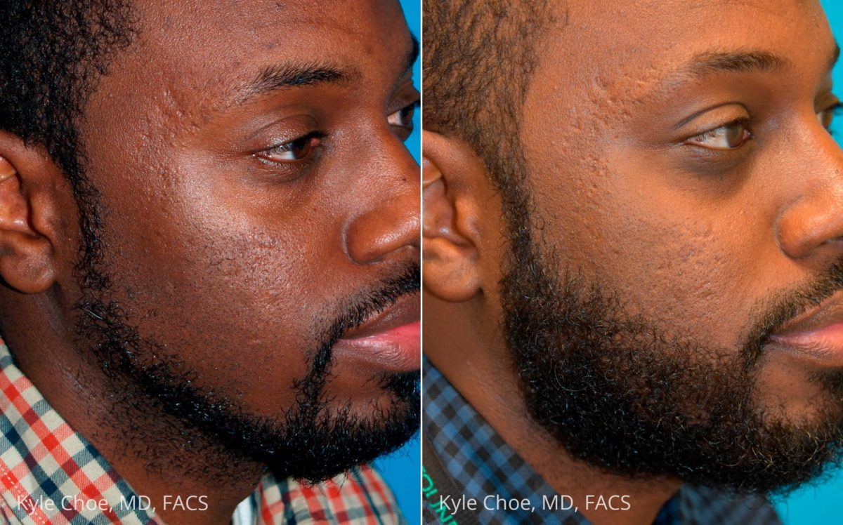 before and after photos in , , Hair Restoration in Virginia Beach, VA
